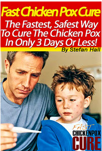 Chicken Pox Cure Ebook